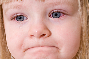 Three Year Old Little Girl With Conjunctivitis (Pink Eye)